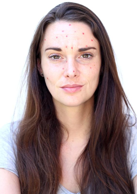 acne puistjes pukkels