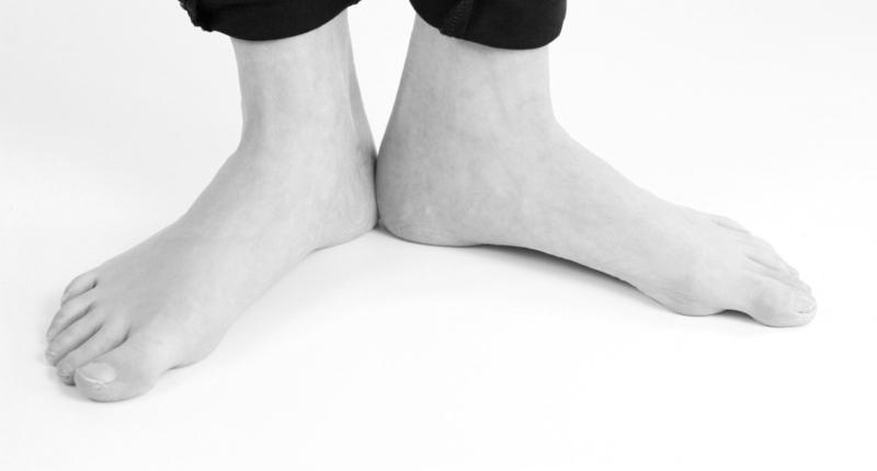 mijn voet heeft een knobbel